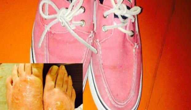 Zehirli ayakkabı mı bu hale getirdi?