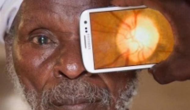 Göz doktoru akıllı telefon!