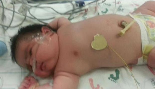 Yeni doğan bebek görenleri şaşırttı
